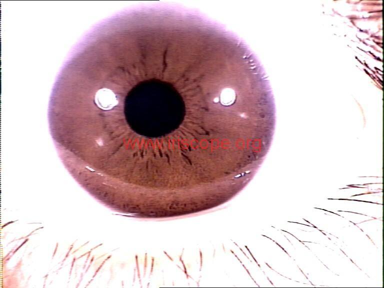 iridology images (83)