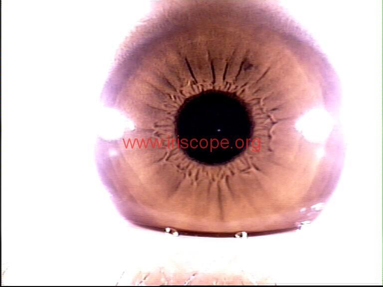 iridology images (84)