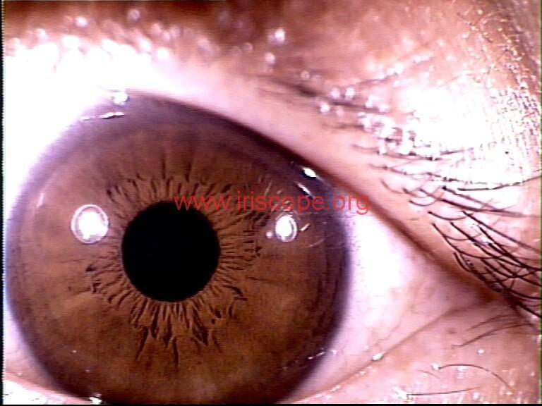 iridology images (85)