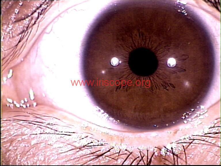 iridology images (86)