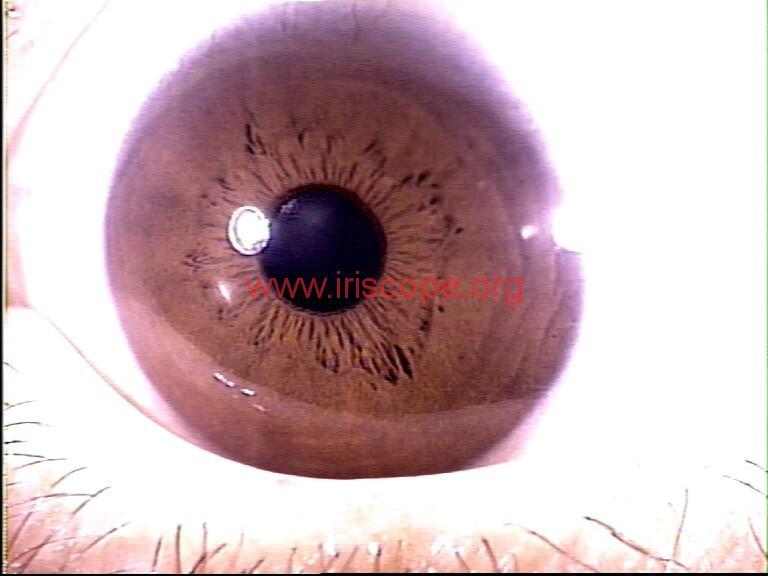 iridology images (87)