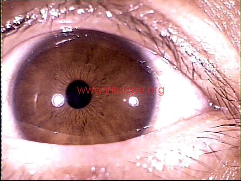 iridology images (88)