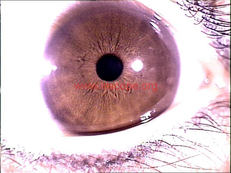 iridology images (89)