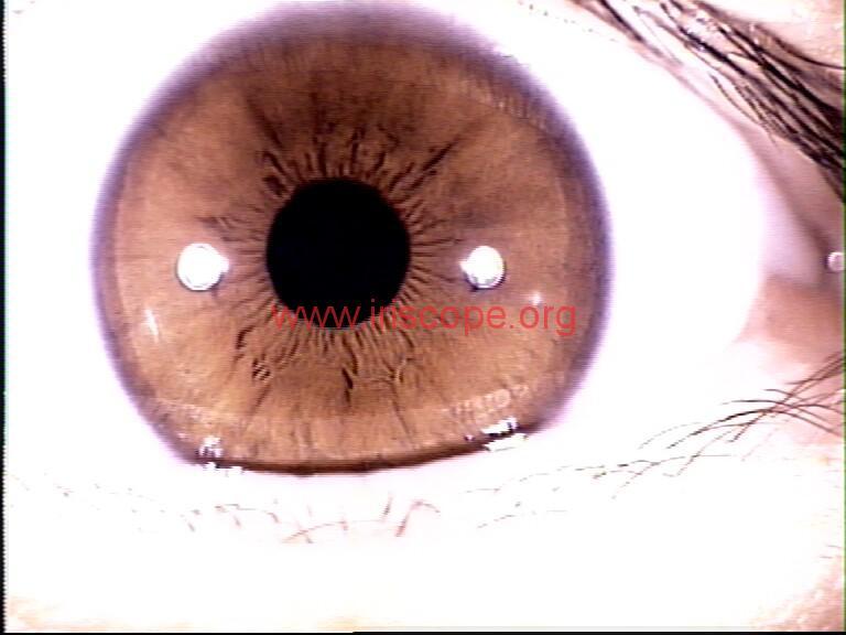 iridology images (9)