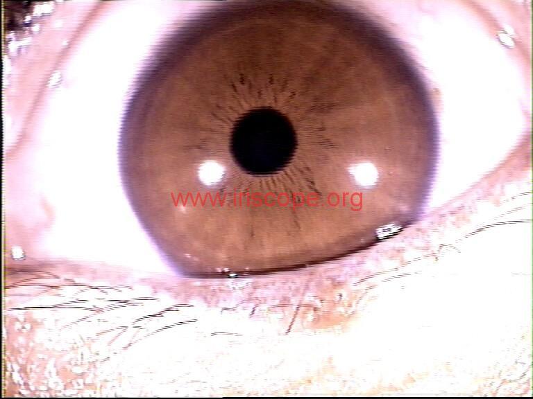iridology images (90)
