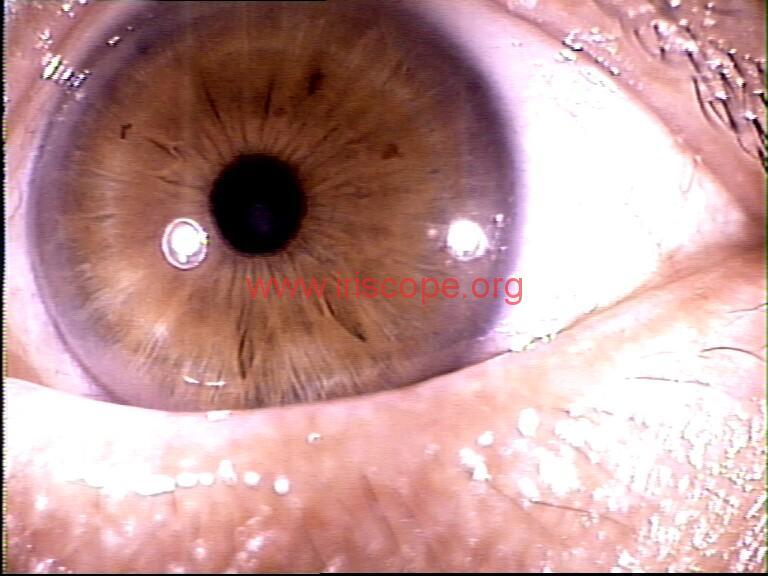 iridology images (91)