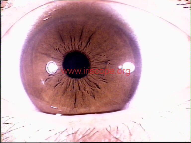iridology images (93)