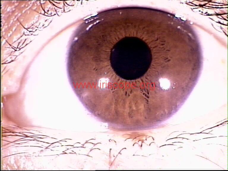 iridology images (94)