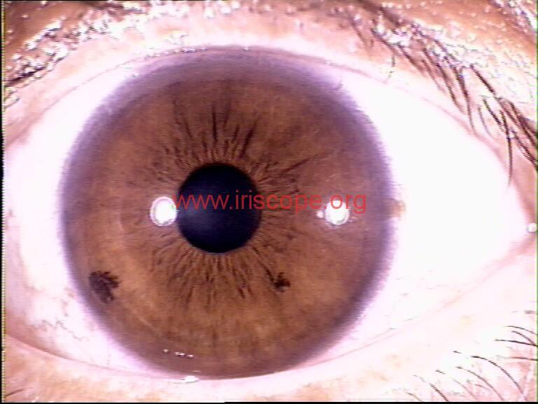 iridology images (96)