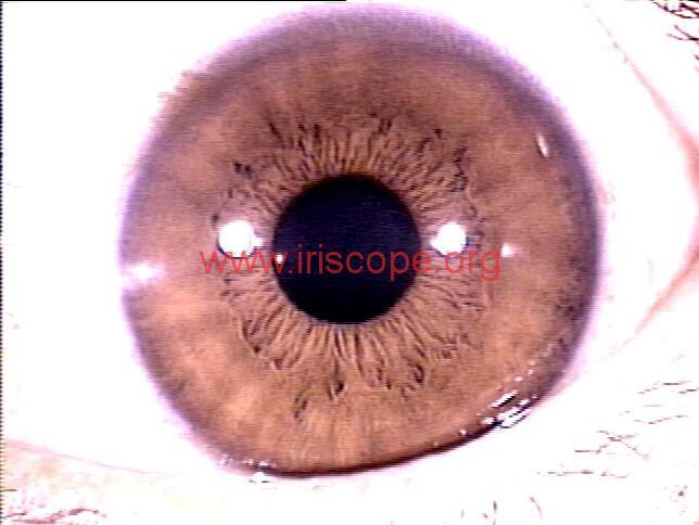 iridology images (98)
