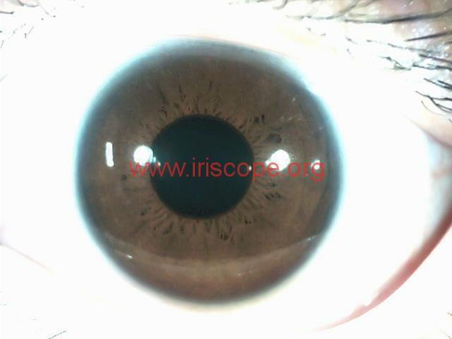 iridology images (99)