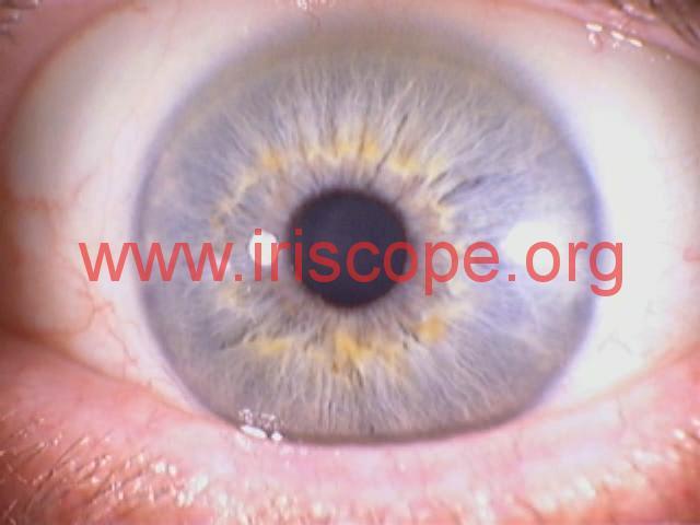 iridology photo (2)
