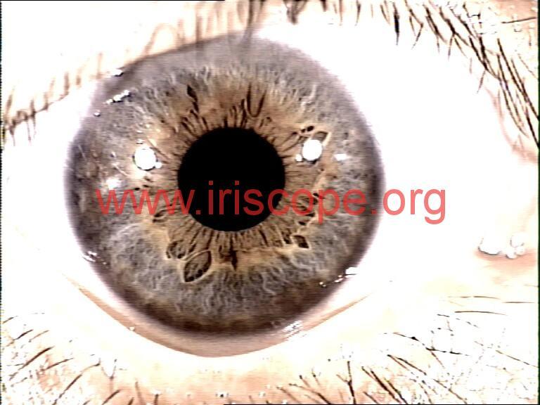 iridology photo (5)