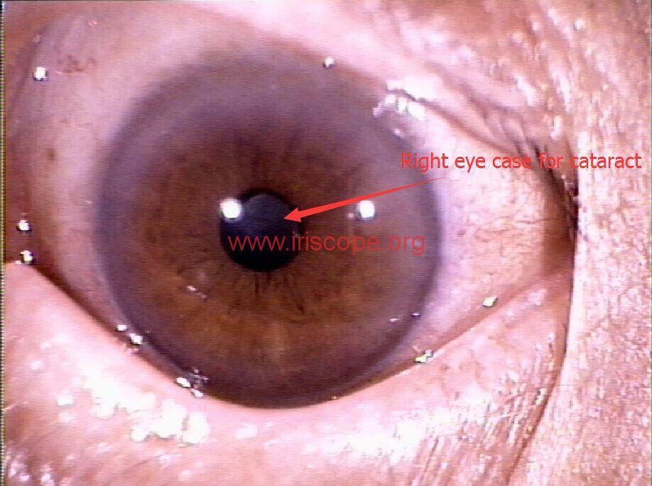 ritht eye case for cataract
