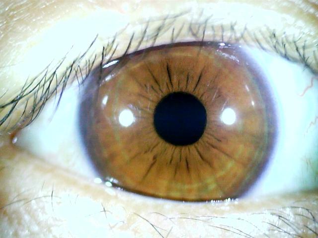 iridology images 1.3MP (1)