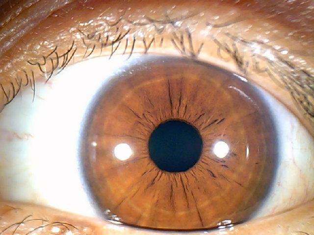 iridology images 1.3MP (11)