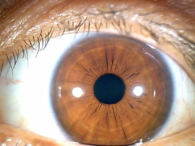 iridology images 1.3MP (12)