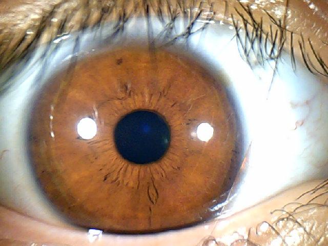 iridology images 1.3MP (14)