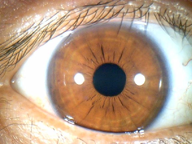 iridology images 1.3MP (15)