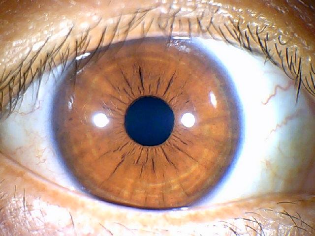 iridology images 1.3MP (3)