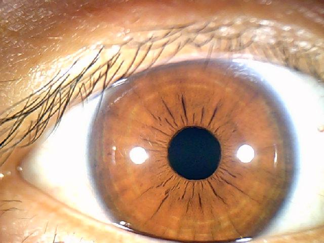 iridology images 1.3MP (6)