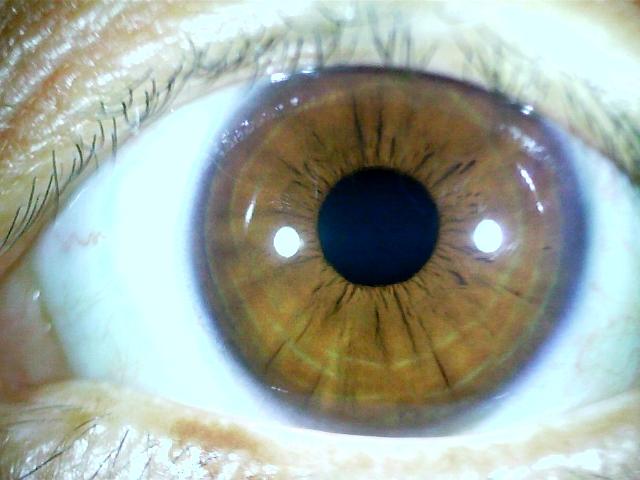 iridology images 1.3MP (7)