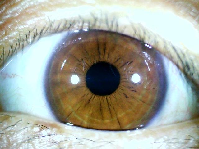 iridology images 1.3MP (8)