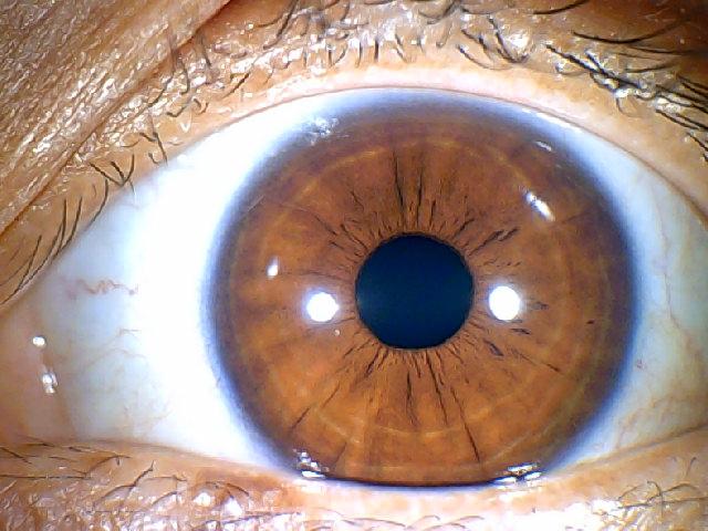 iridology images 1.3MP (9)