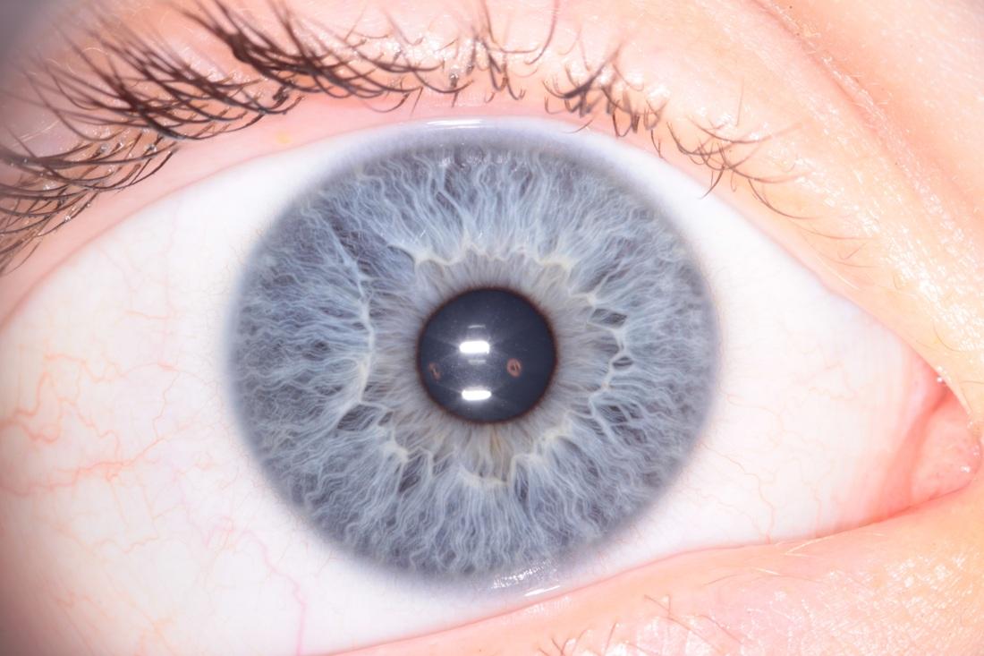 iridology eye images