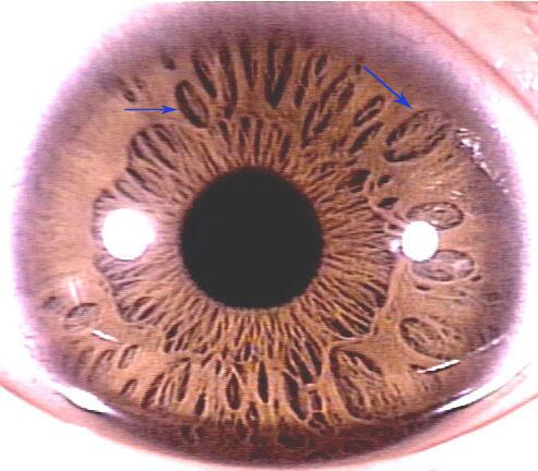 iridology Pit