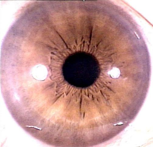 iridology Radii Solaris