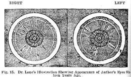 Fig.15.sm