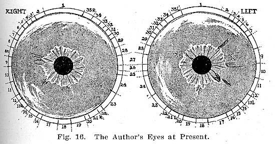 Fig.16.lg