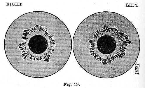 Fig.19.lg
