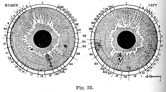 Fig.25.lg