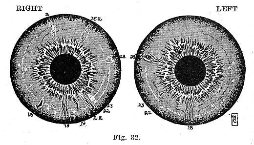 Fig.32.lg
