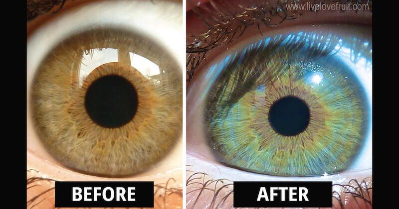iridology before and after photos EyesChangeColour