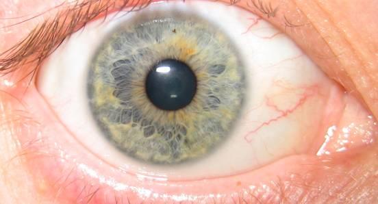 iridology-eye-blue