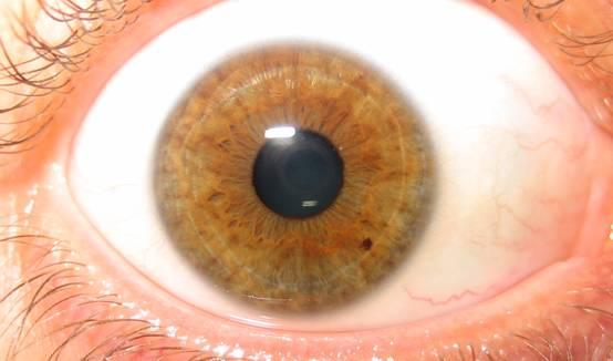 iridology parasites