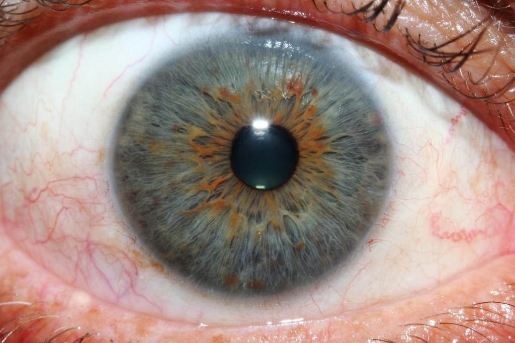 iridology eys images 1
