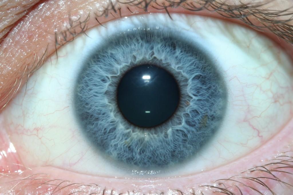 iridology eys images
