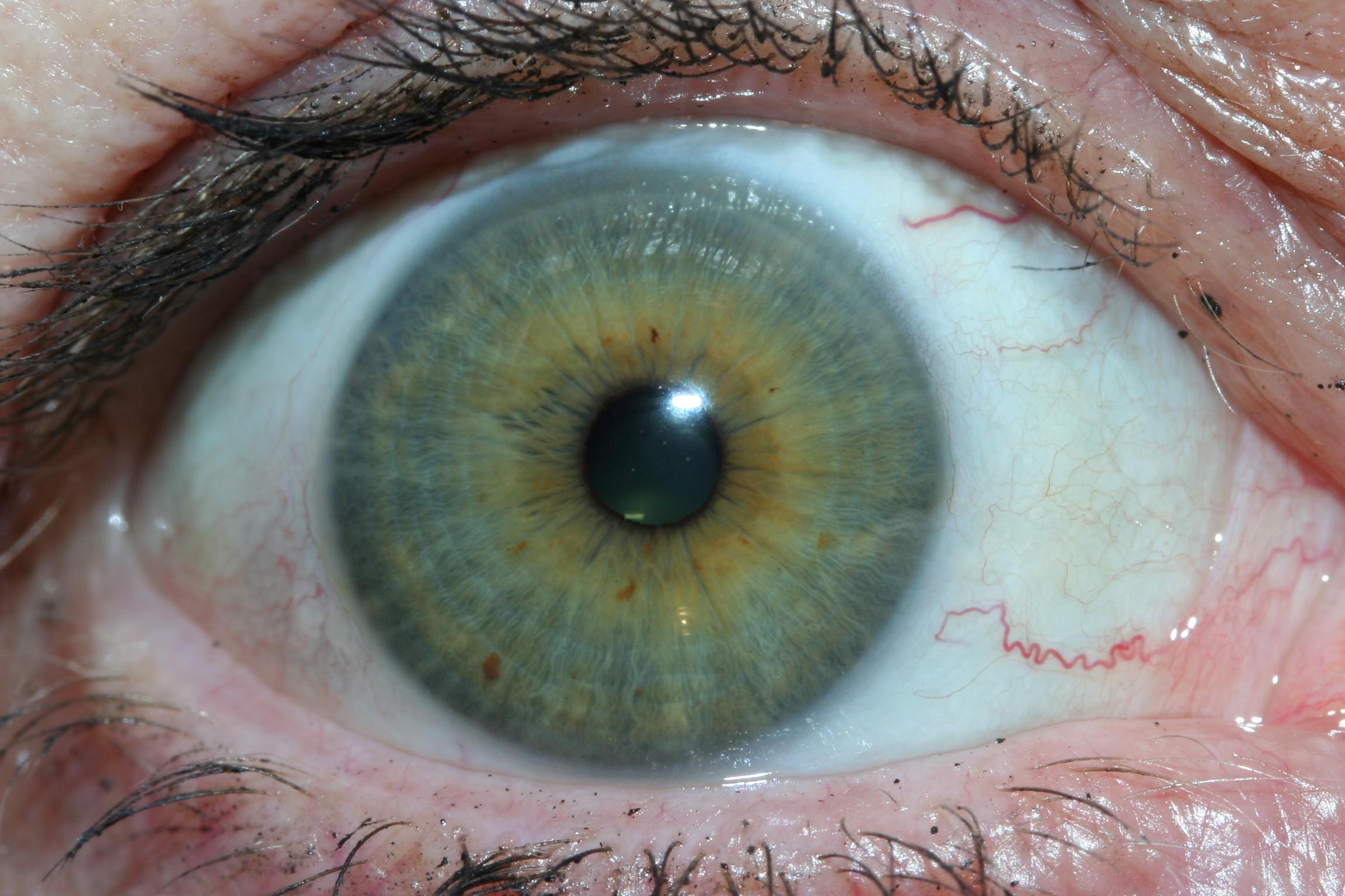iridology eys images 5