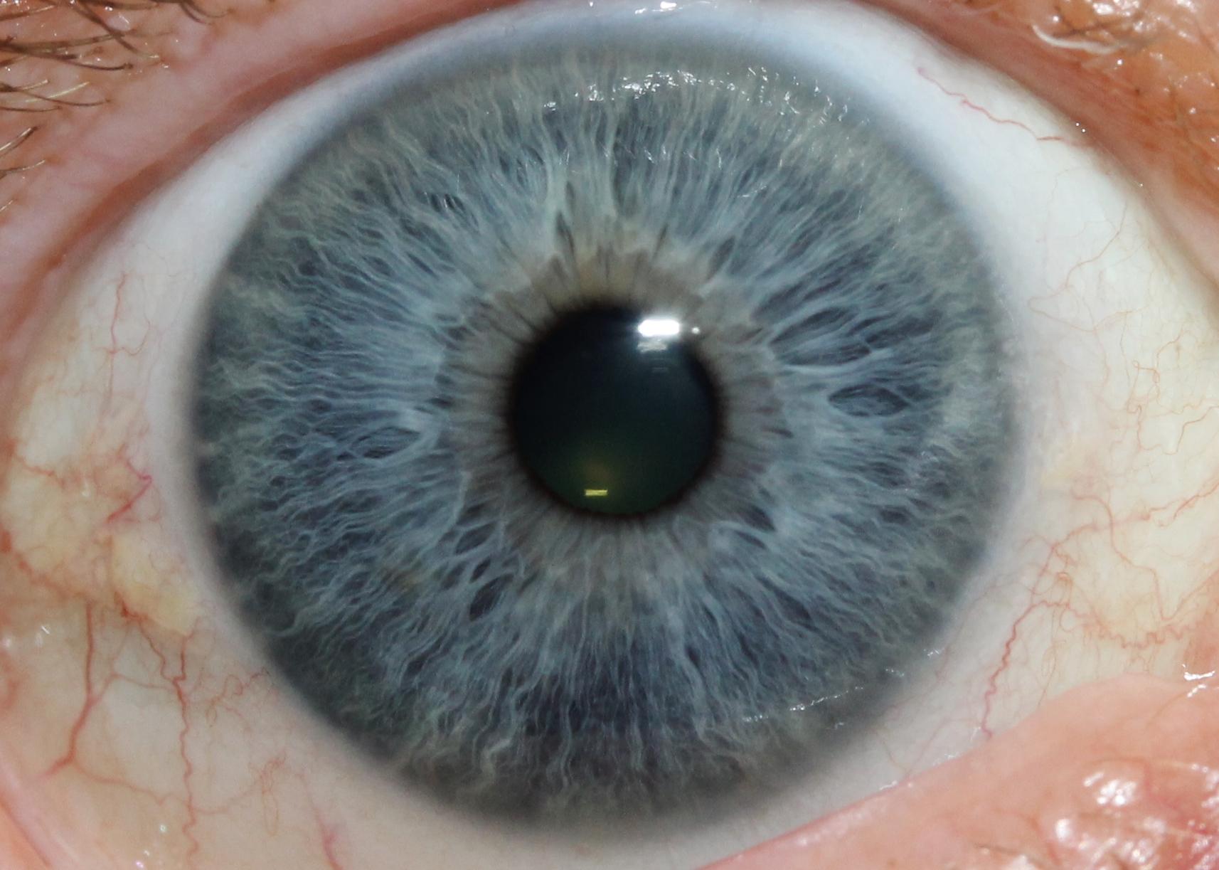 iridology eys images 8