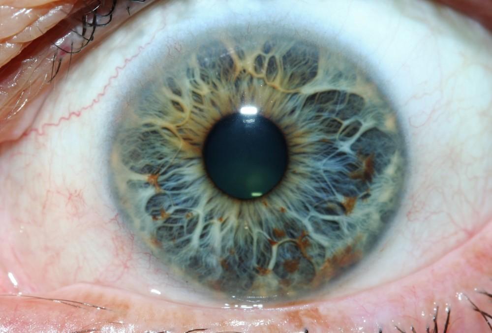 iridology images 11