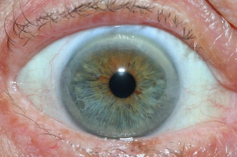 iridology images 13