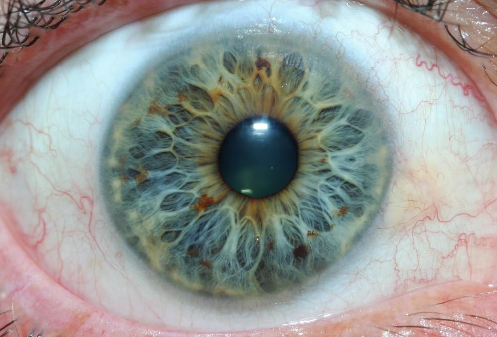 iridology images 14