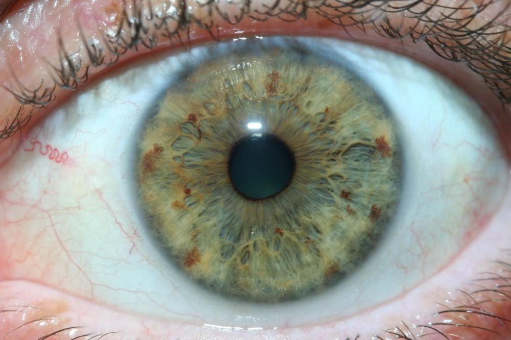 iridology images 15
