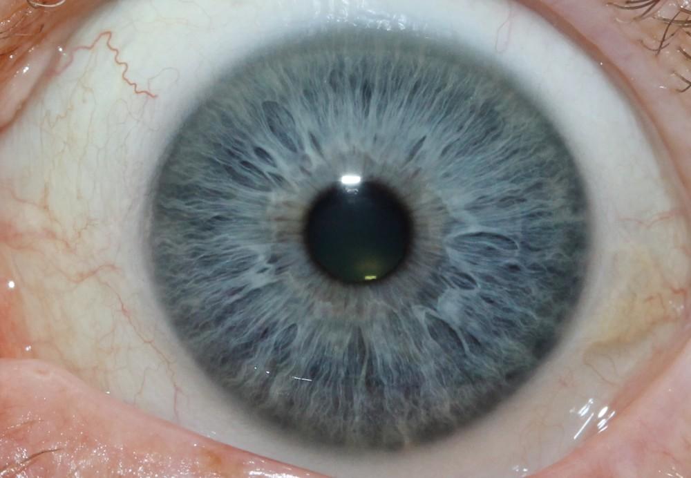 iridology images 17