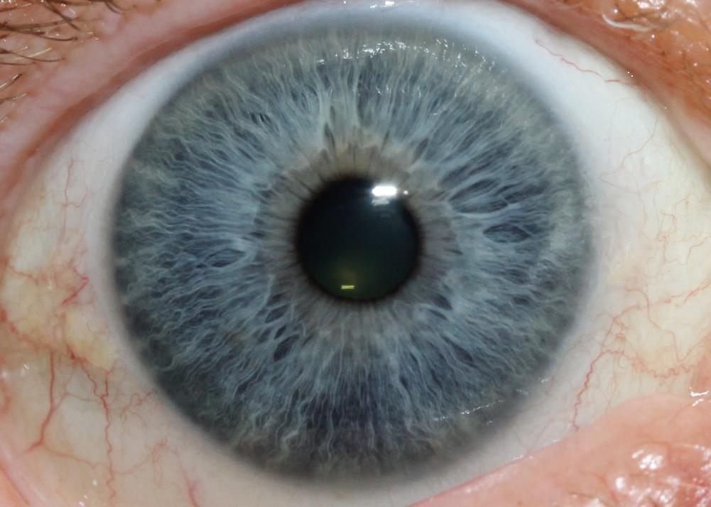 iridology images 18