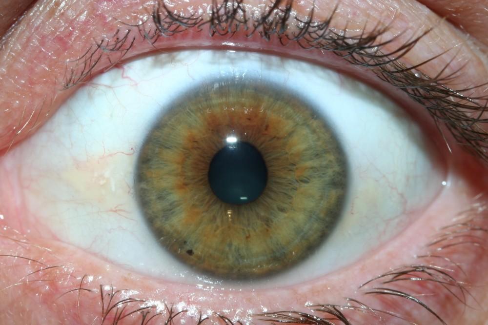 iridology images 19